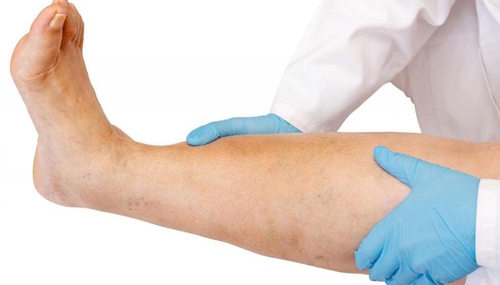 Статья Каковы плюсы и минусы склеротерапии при варикозном расширении вен?