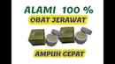 WA 085743399965 Salep Obat Jerawat Ampuh di Palembang