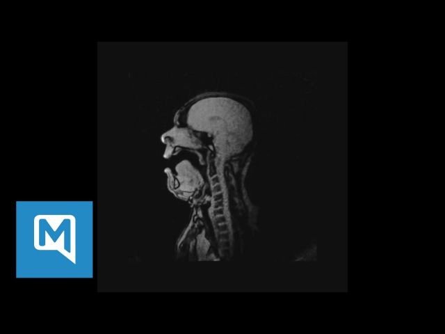 """Gruseliges Video MRT Aufnahmen von Michael Volle bei """"Lied an den Abendstern"""