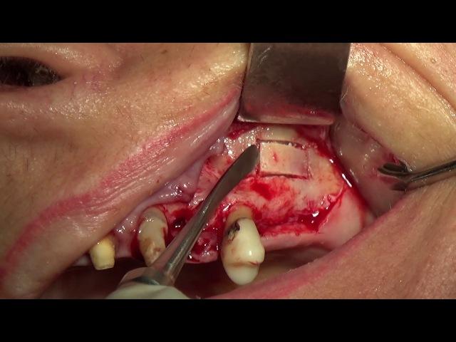 Sinus Lift Repair of a perforated Sinus Membrane