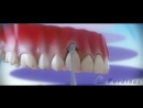 Receding gums - Treatment of gingival recession ©