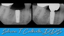 Implant Impression Abutment and Crown Seating Dental Minute with Steven T Cutbirth DDS