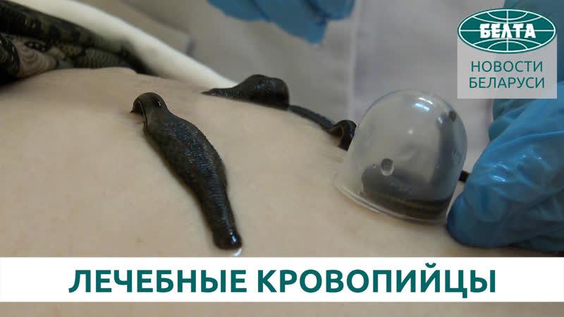 Как лечат пиявками в Беларуси