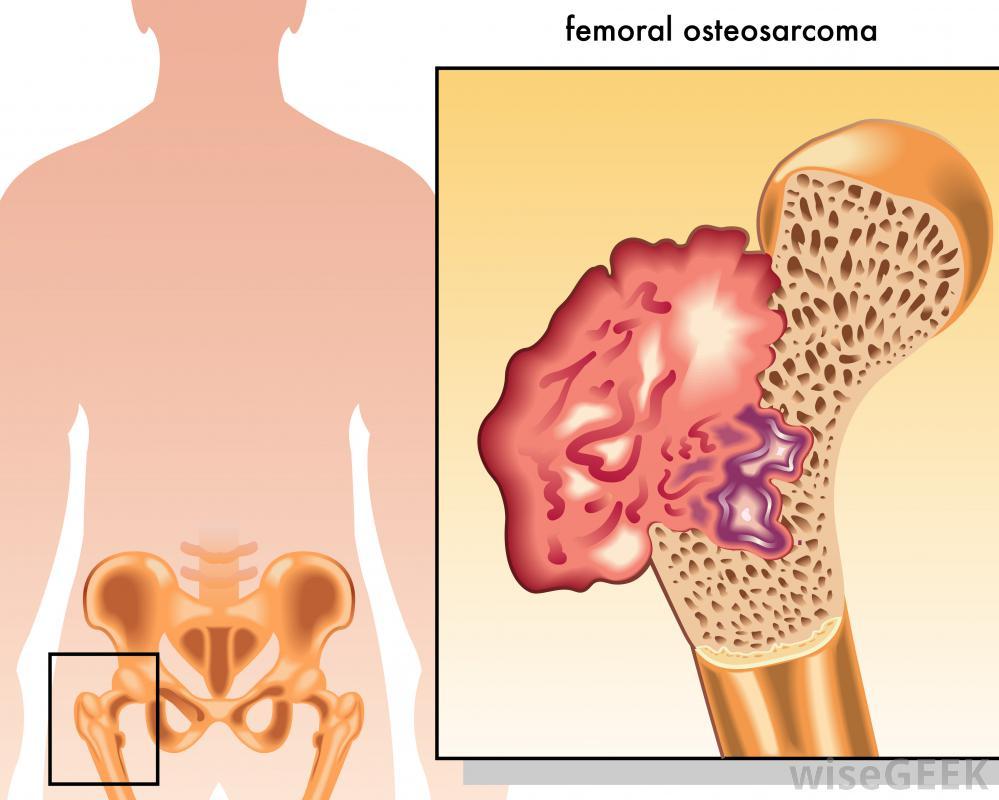 Остеосаркома является наиболее распространенным из основных видов рака костей.