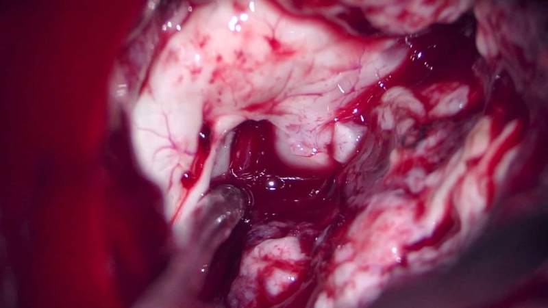 Prof PSC Left anterior temporal lobectomy with amygdalo hippocampectomy