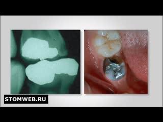 Планирование лечения в детской стоматологии. Руководство для смежных специлистов