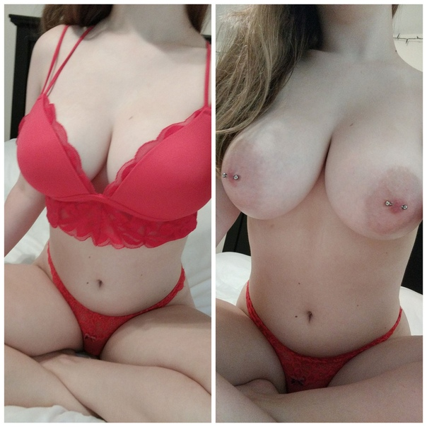 Should I Be Worried About Silent Rupture If I Have Silicone Breast Implants