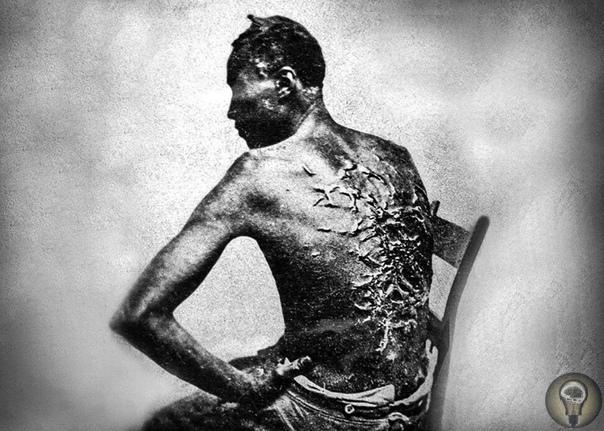 Раб из Батон-Ружа, штат Луизиана, 1863 год.