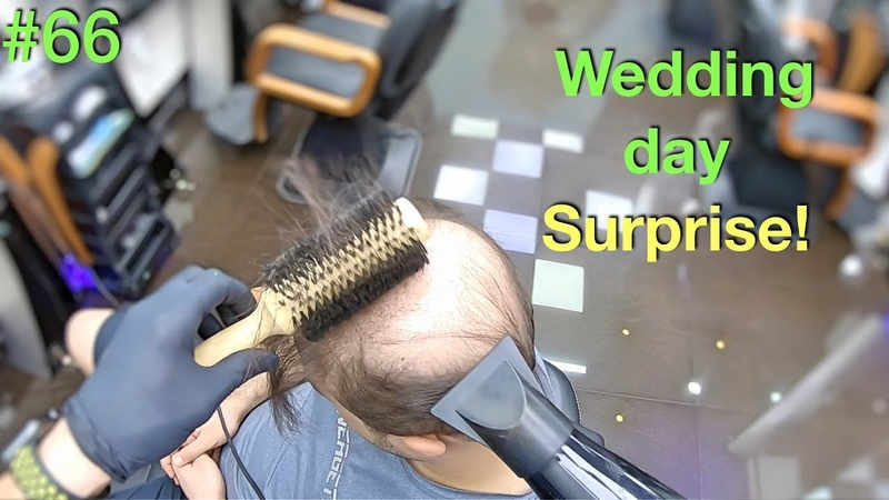 Wedding Day Surprise! Wife Wont Recognize Him (Hairstyle for Men) Hair Building Fibers 2019