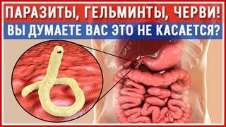 ГЛИСТЫ есть у Всех! Как изгнать паразитов? Лучшая защита. Лечение гельминтозов!