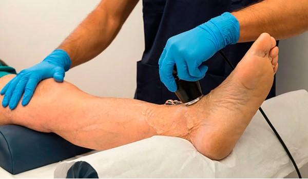 Атеросклероз сосудов нижних конечностей лечение в Москве