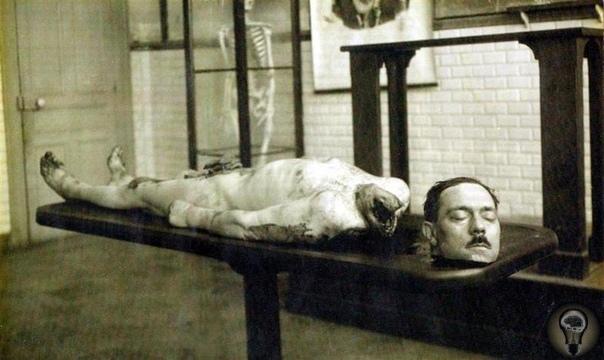 Эксперименты Габриэля Борьё над отрубленной головой В 1905 году врач Габриэль Борьё присутствовал при гильотинировании преступника Анри Лангиля. Сразу после казни Борьё провел несколько