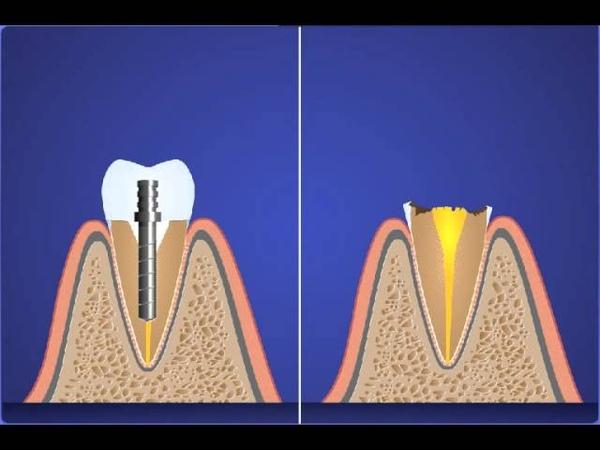 восстановление зубов стекловолоконными штифтами