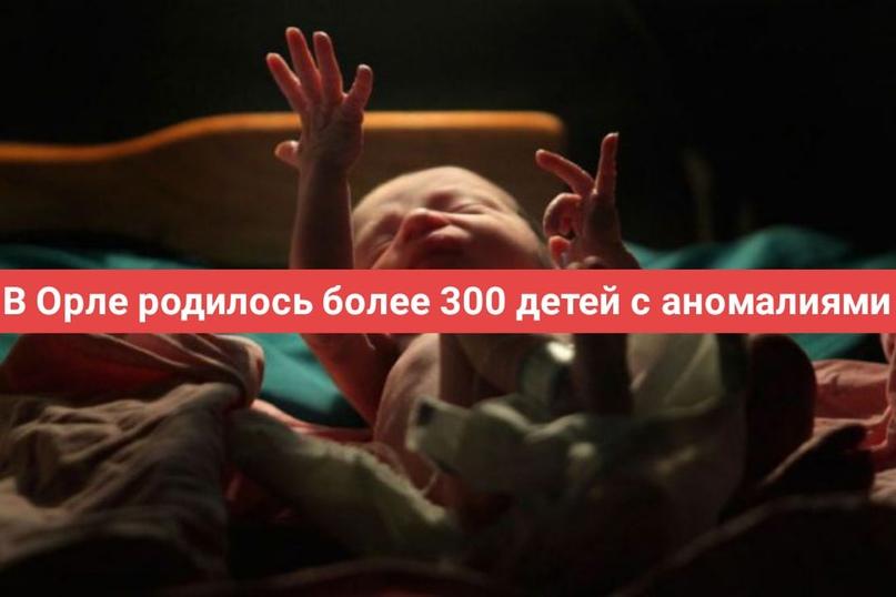 В Орле родилось более 300 детей с аномалиями