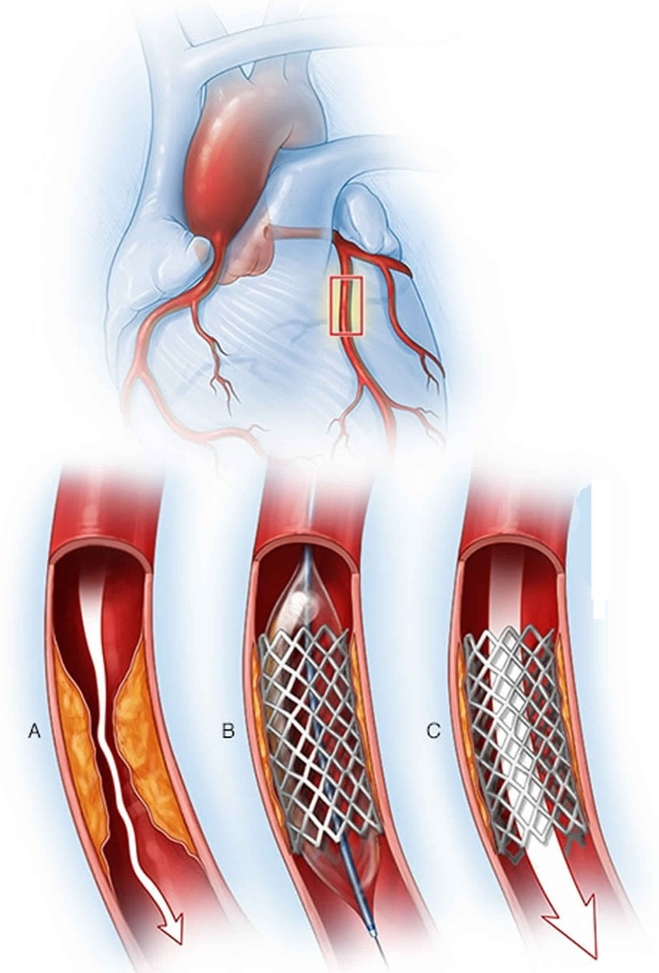 Итоги работы кардиологического отделения в 2020 году, изображение №2