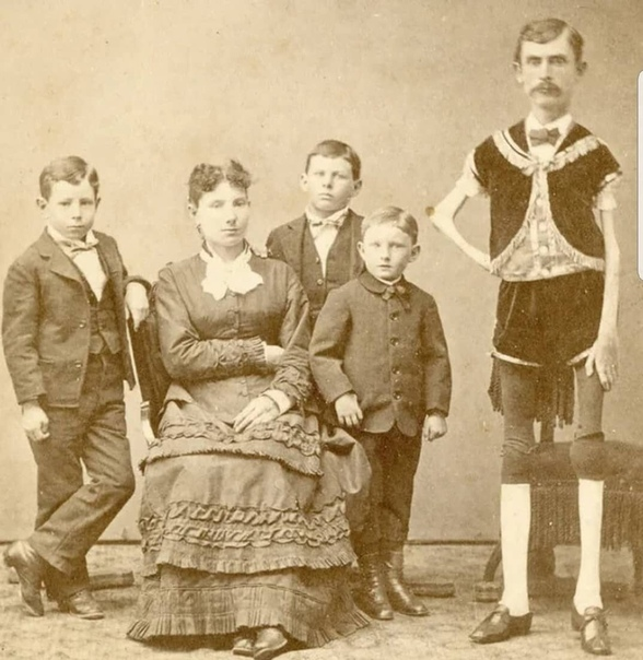 Исаак Спрэг, самый худой человек, живший в 19 веке